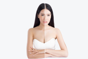 Why Asia is Obsessed with White Skin and Whitening Products